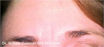 Before a treatment with Botox for wrinkles.