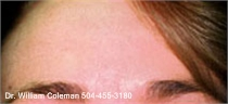 After a treatment with Botox for wrinkles.