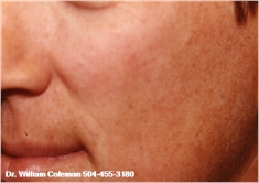 Chemical Peel New Orleans