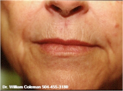 Dermabrasion for wrinkles around the mouth