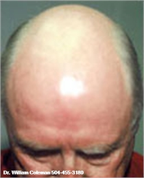 Dermabrasion of the head After