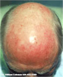 Dermabrasion of the head before