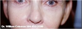 Before Laser Lower Eyelid Surgery