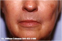 Skin Resurfacing New Orleans