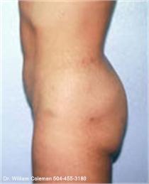 Liposuction treatment of the abdomen after