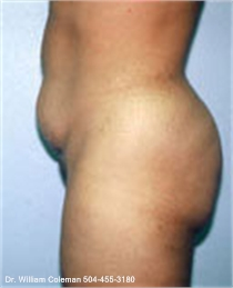 Liposuction Treatment of the Abdomen Before
