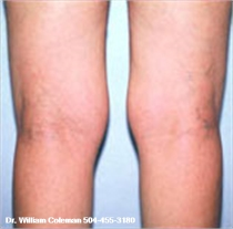 Liposuction Treatment of the knees before