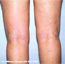 Liposuction treatment of the knee after