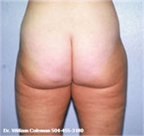 Liposuction Treatment of the Thighs After