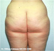 Liposuction Treatment of the Thighs before