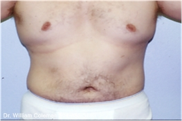 Liposuction Treatment of Chest & Flanks Before