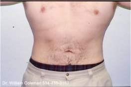Liposuction Treatment of Chest & Flanks After