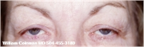 Upper Eyelid Surgery Blepharoplasty Before