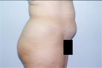 Abdominal Liposuction New Orleans