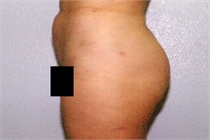 Liposuction of the Hips New Orleans